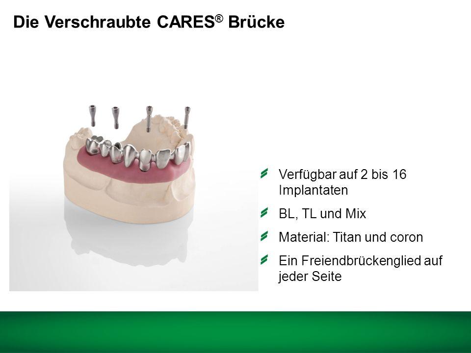 Straumann ® CARES ® verschraubte Brücken und Stege