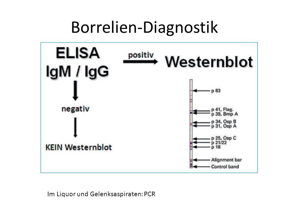 Borrelien-Diagnostik Im Liquor und Gelenksaspiraten: PCR