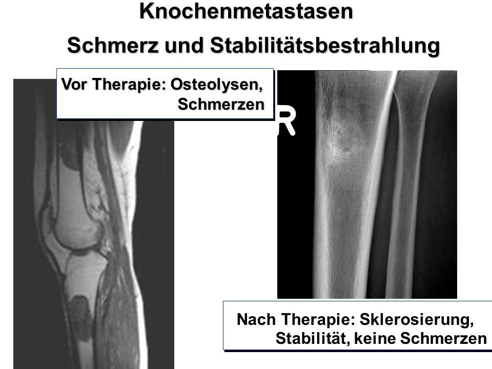 Schmerz und Stabilitätsbestrahlung Knochenmetastasen Pakisch/Graz 04 Vor Therapie: Osteolysen, Schmerzen Schmerzen Vor Therapie: Osteolysen, Schmerzen