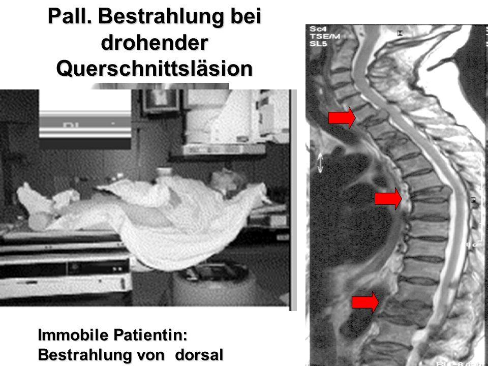 Immobile Patientin: Bestrahlung von dorsal Simulatorlokalisation Pall. Bestrahlung bei drohender Querschnittsläsion