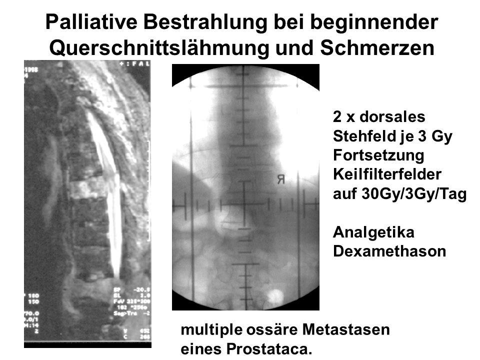 Palliative Bestrahlung bei beginnender Querschnittslähmung und Schmerzen multiple ossäre Metastasen eines Prostataca. 2 x dorsales Stehfeld je 3 Gy Fo
