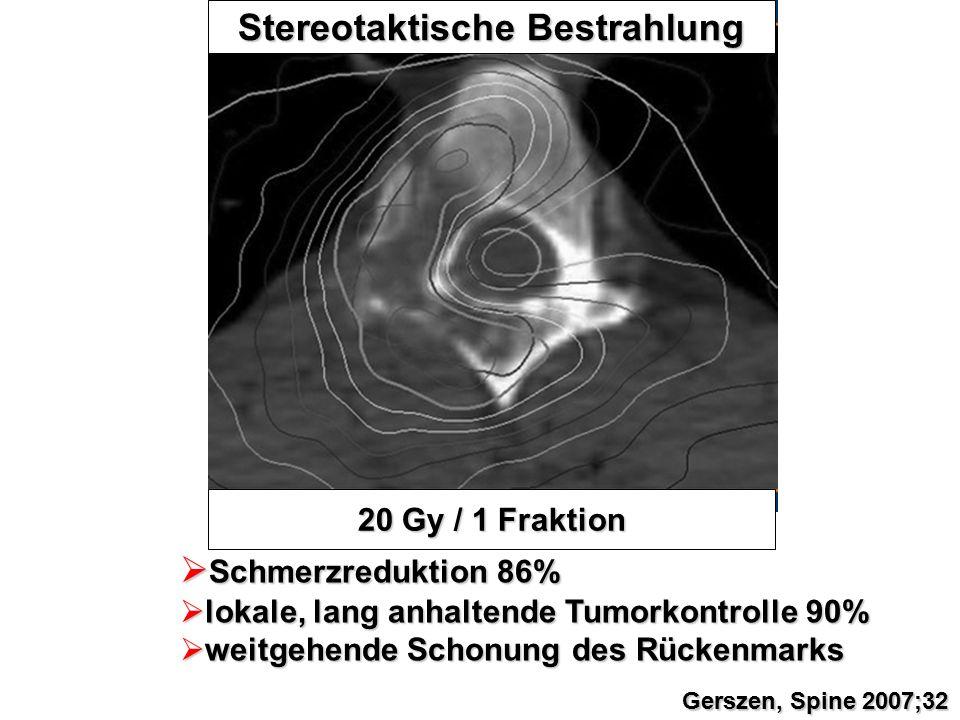 20 Gy / 1 Fraktion Stereotaktische Bestrahlung  Schmerzreduktion 86%  lokale, lang anhaltende Tumorkontrolle 90%  weitgehende Schonung des Rückenma