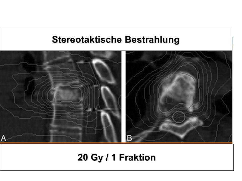 Stereotaktische Bestrahlung 20 Gy / 1 Fraktion