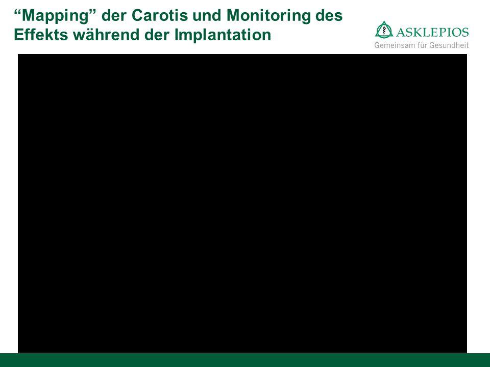 """""""Mapping"""" der Carotis und Monitoring des Effekts während der Implantation"""