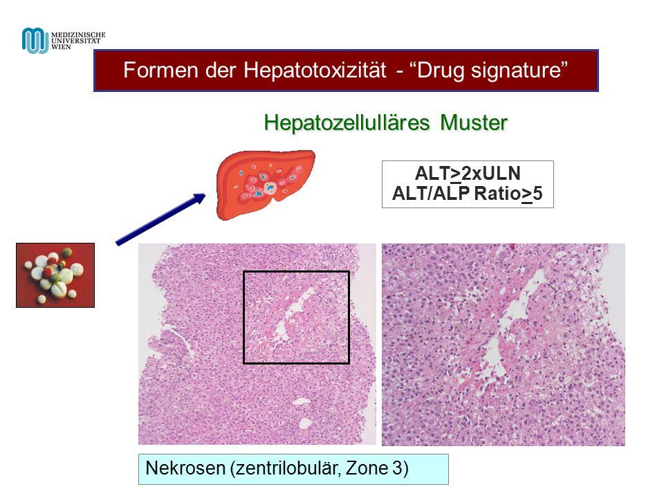 "Hepatozellulläres Muster ALT>2xULN ALT/ALP Ratio>5 Nekrosen (zentrilobulär, Zone 3) Formen der Hepatotoxizität - ""Drug signature"""