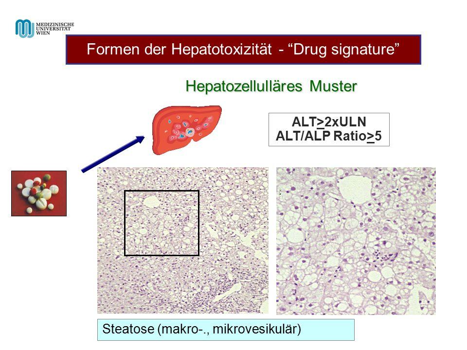 "Hepatozellulläres Muster ALT>2xULN ALT/ALP Ratio>5 Steatose (makro-., mikrovesikulär) Formen der Hepatotoxizität - ""Drug signature"""