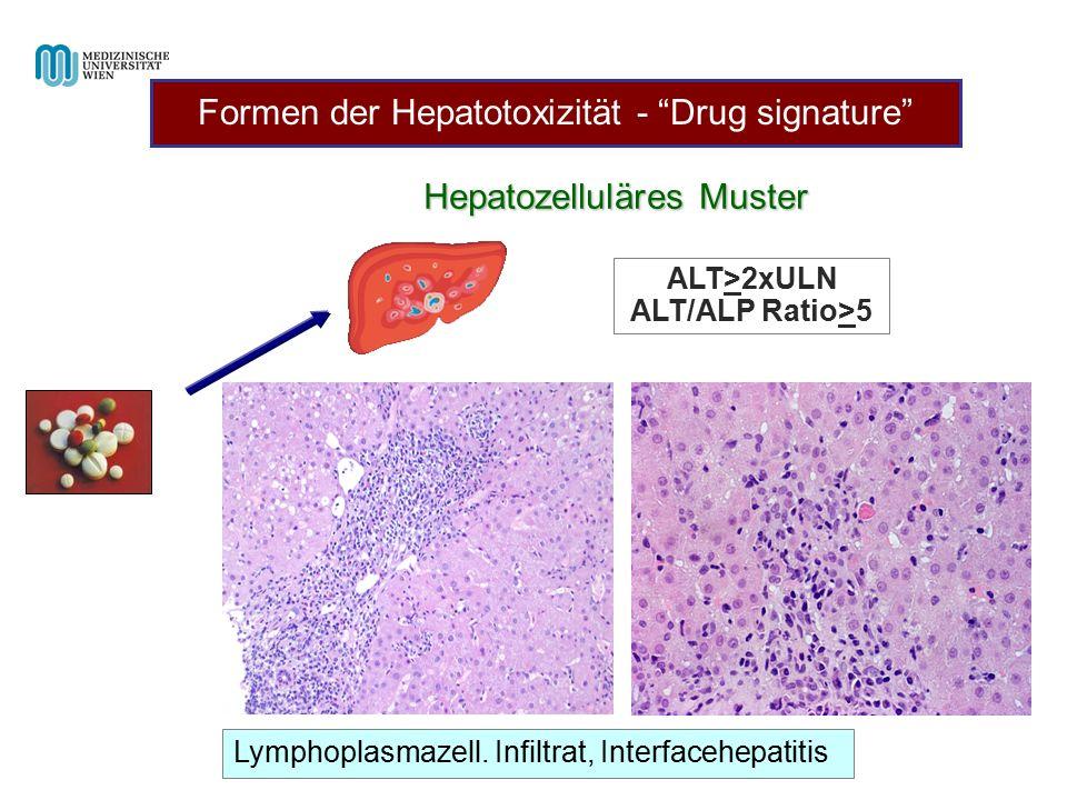 "Hepatozelluläres Muster ALT>2xULN ALT/ALP Ratio>5 Lymphoplasmazell. Infiltrat, Interfacehepatitis Formen der Hepatotoxizität - ""Drug signature"""