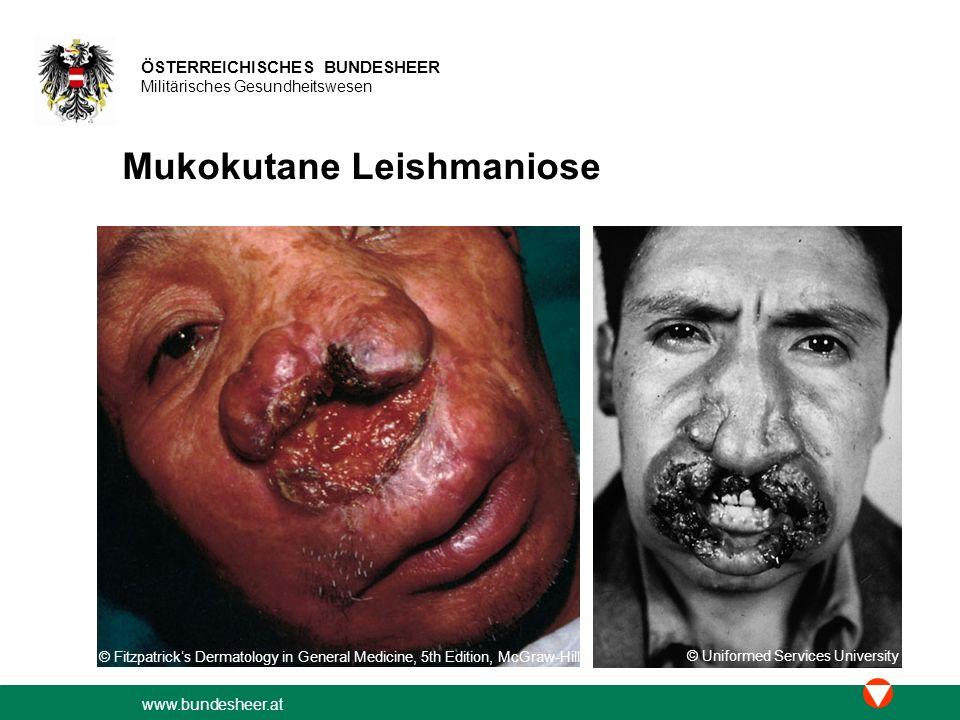 www.bundesheer.at ÖSTERREICHISCHES BUNDESHEER Militärisches Gesundheitswesen Mukokutane Leishmaniose © Fitzpatrick's Dermatology in General Medicine,