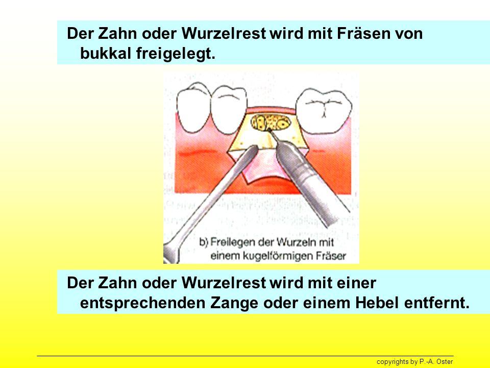 copyrights by P.-A. Oster Der Zahn oder Wurzelrest wird mit Fräsen von bukkal freigelegt. Der Zahn oder Wurzelrest wird mit einer entsprechenden Zange