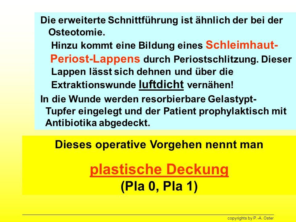 copyrights by P.-A. Oster Die erweiterte Schnittführung ist ähnlich der bei der Osteotomie. Hinzu kommt eine Bildung eines Schleimhaut- Periost-Lappen