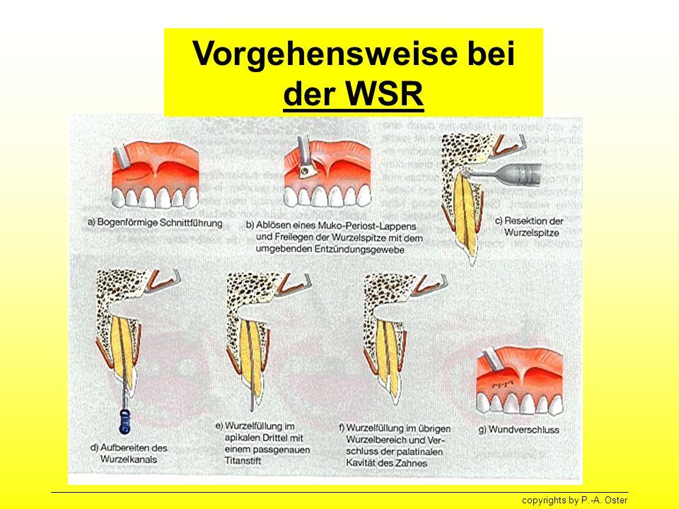 copyrights by P.-A. Oster Vorgehensweise bei der WSR
