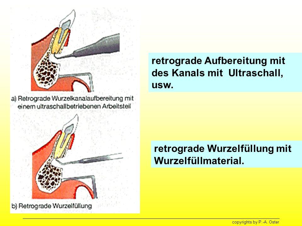 copyrights by P.-A. Oster retrograde Aufbereitung mit des Kanals mit Ultraschall, usw. retrograde Wurzelfüllung mit Wurzelfüllmaterial.