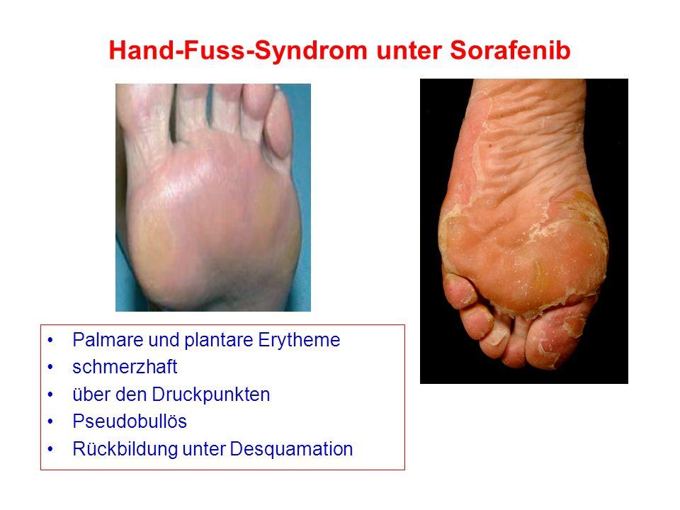 Hand-Fuss-Syndrom unter Sorafenib Palmare und plantare Erytheme schmerzhaft über den Druckpunkten Pseudobullös Rückbildung unter Desquamation