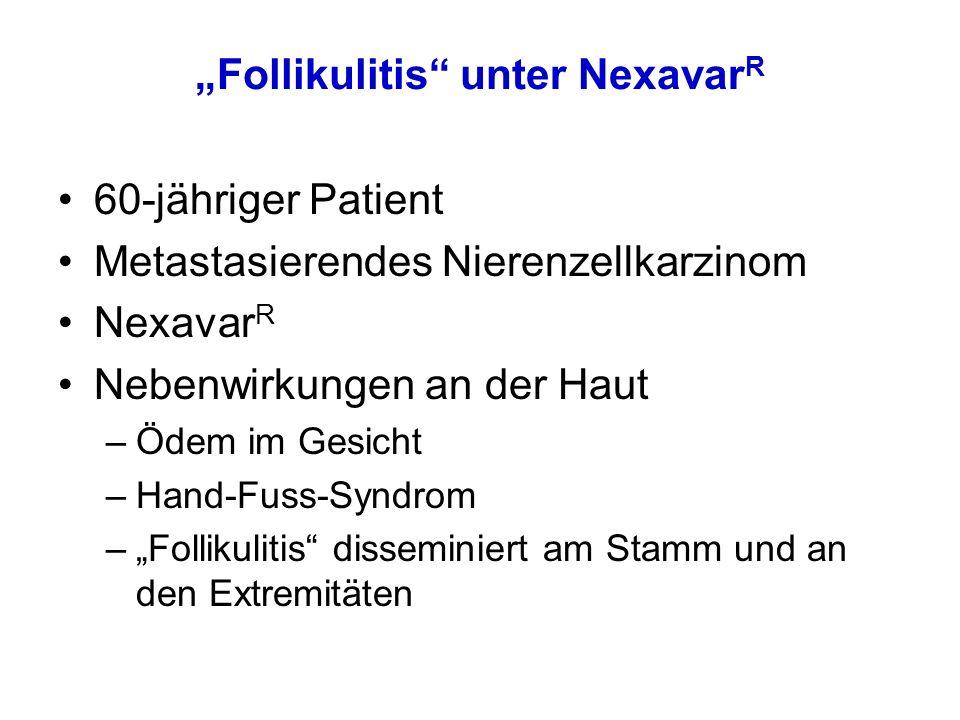 """""""Follikulitis unter Nexavar R 60-jähriger Patient Metastasierendes Nierenzellkarzinom Nexavar R Nebenwirkungen an der Haut –Ödem im Gesicht –Hand-Fuss-Syndrom –""""Follikulitis disseminiert am Stamm und an den Extremitäten"""
