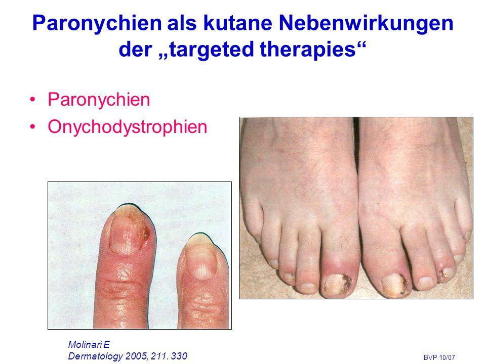 """Paronychien als kutane Nebenwirkungen der """"targeted therapies Paronychien Onychodystrophien BVP 10/07 Molinari E Dermatology 2005, 211."""