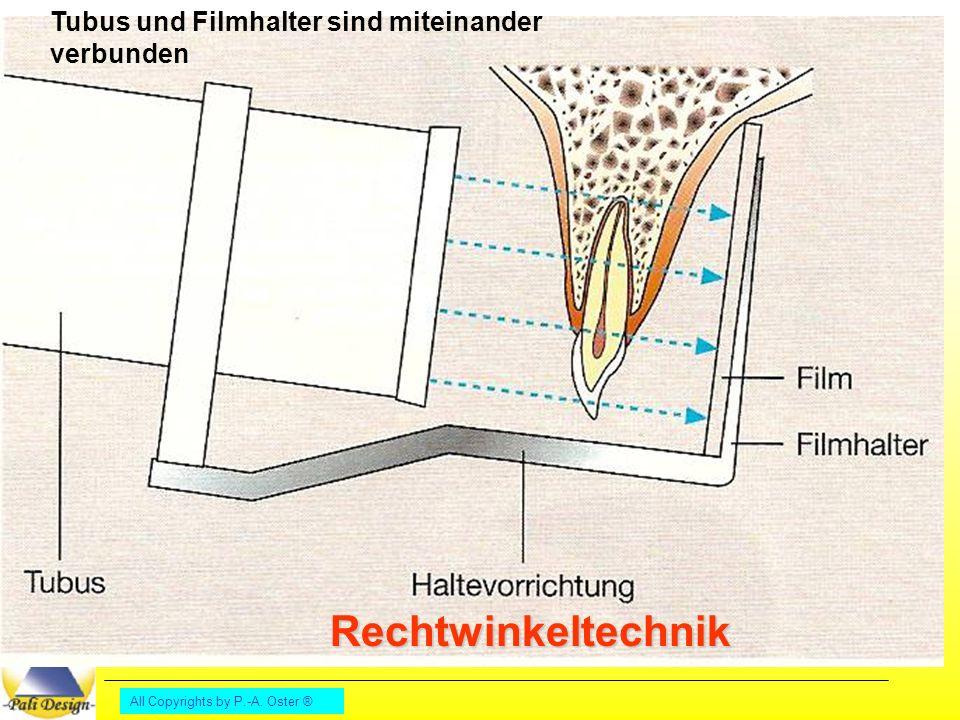 All Copyrights by P.-A. Oster ® Rechtwinkeltechnik Tubus und Filmhalter sind miteinander verbunden