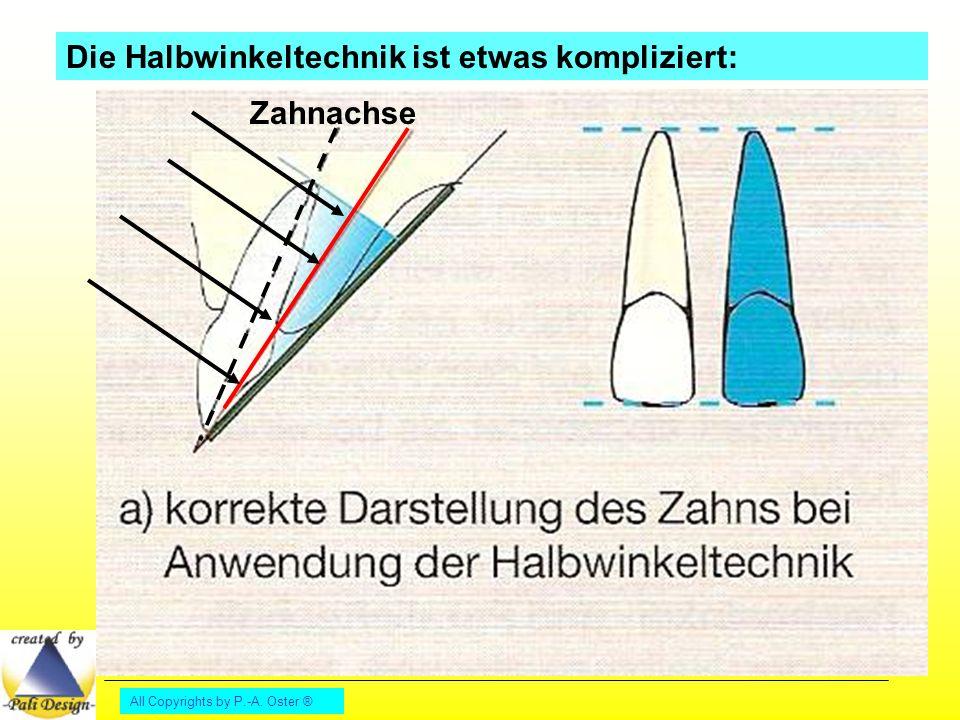 All Copyrights by P.-A. Oster ® Die Halbwinkeltechnik ist etwas kompliziert: Zahnachse