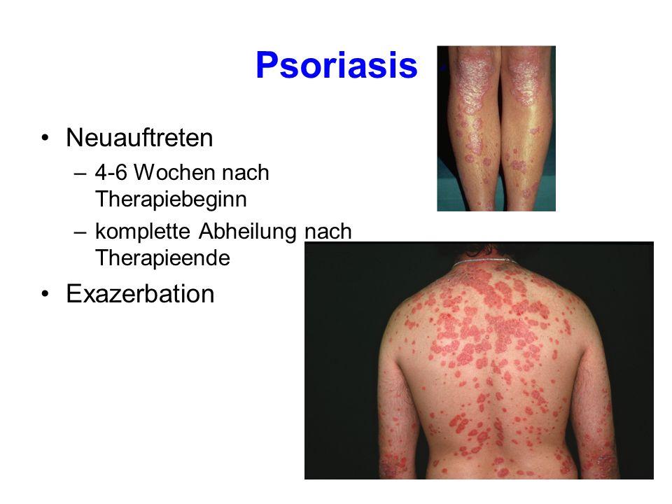 Psoriasis Neuauftreten –4-6 Wochen nach Therapiebeginn –komplette Abheilung nach Therapieende Exazerbation