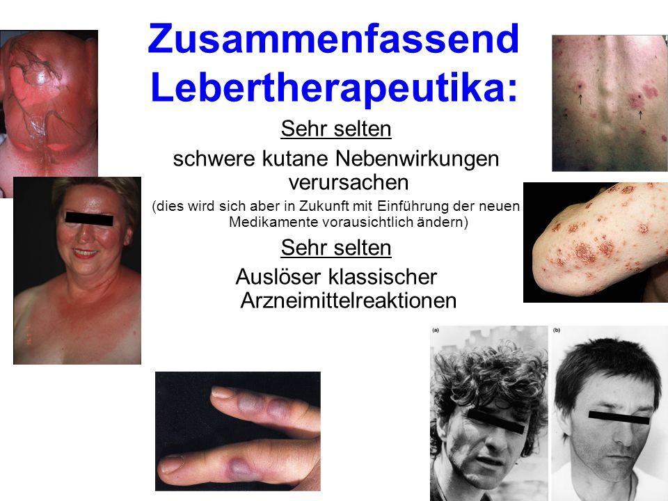 Zusammenfassend Lebertherapeutika: Sehr selten schwere kutane Nebenwirkungen verursachen (dies wird sich aber in Zukunft mit Einführung der neuen Medi