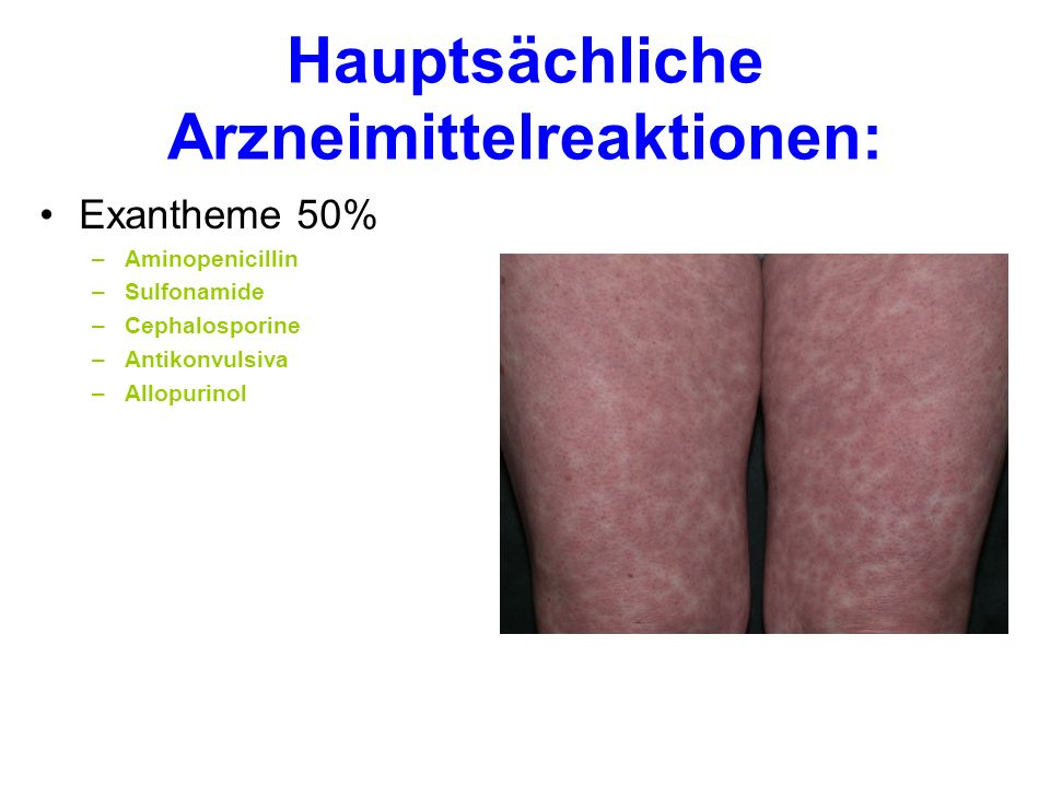 Hauptsächliche Arzneimittelreaktionen: Exantheme 50% –Aminopenicillin –Sulfonamide –Cephalosporine –Antikonvulsiva –Allopurinol