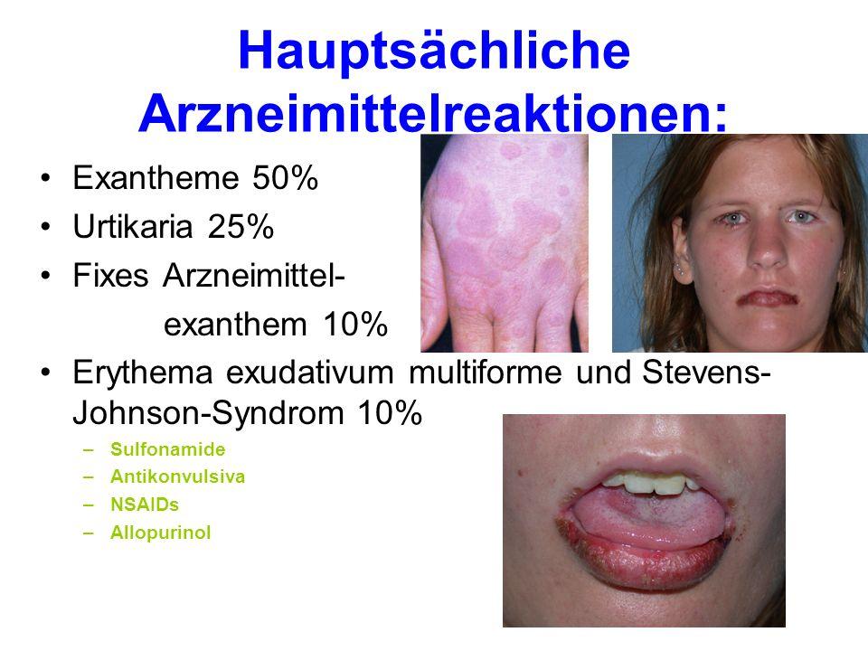 Hauptsächliche Arzneimittelreaktionen Exantheme 50% Urtikaria 25% Fixes Arzneimittelexanthem 10% Erythema exudativum multiforme und Stevens- Johnson-Syndrom 10% Toxisch epidermale Nekrolyse (selten) –Sulfonamide –Antikonvulsiva –NSAIDs –Allopurinol