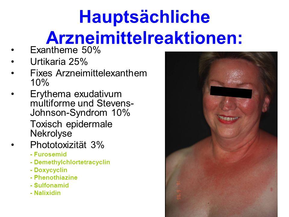 Hauptsächliche Arzneimittelreaktionen: Exantheme 50% Urtikaria 25% Fixes Arzneimittelexanthem 10% Erythema exudativum multiforme und Stevens- Johnson-Syndrom 10% Toxisch epidermale Nekrolyse Phototoxizität 3% - Furosemid - Demethylchlortetracyclin - Doxycyclin - Phenothiazine - Sulfonamid - Nalixidin