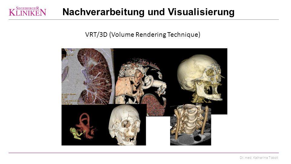 Dr. med. Katharina Tobolt VRT/3D (Volume Rendering Technique) Nachverarbeitung und Visualisierung