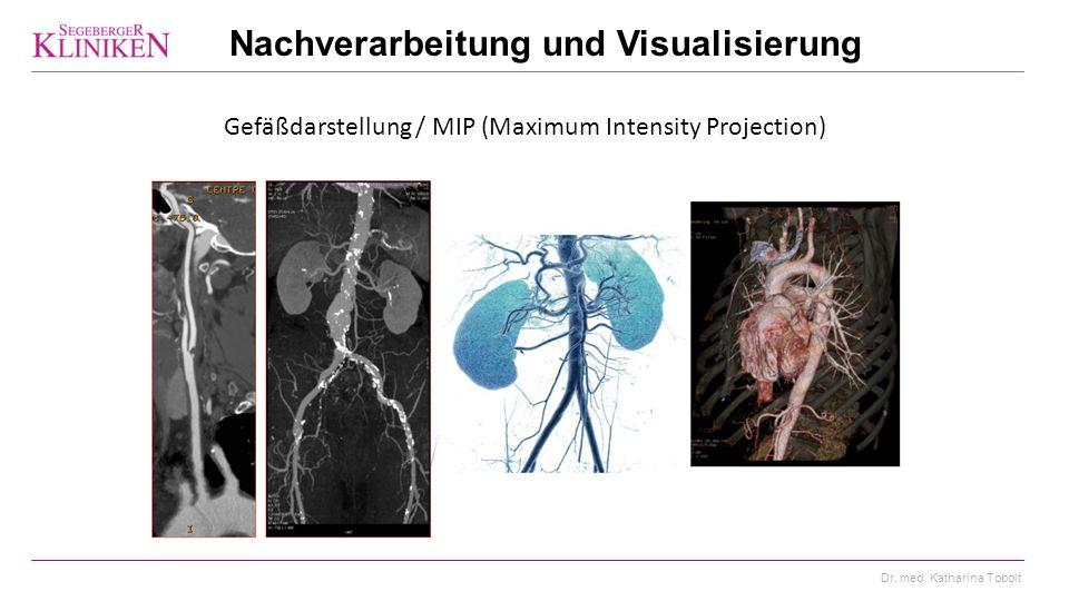 Dr. med. Katharina Tobolt Gefäßdarstellung / MIP (Maximum Intensity Projection) Nachverarbeitung und Visualisierung