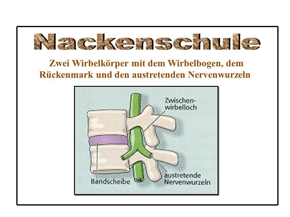 Zwei Wirbelkörper mit dem Wirbelbogen, dem Rückenmark und den austretenden Nervenwurzeln