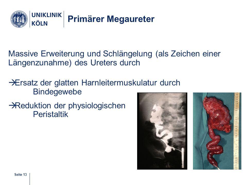 Seite 13 Primärer Megaureter Massive Erweiterung und Schlängelung (als Zeichen einer Längenzunahme) des Ureters durch  Ersatz der glatten Harnleitermuskulatur durch Bindegewebe  Reduktion der physiologischen Peristaltik 10-38