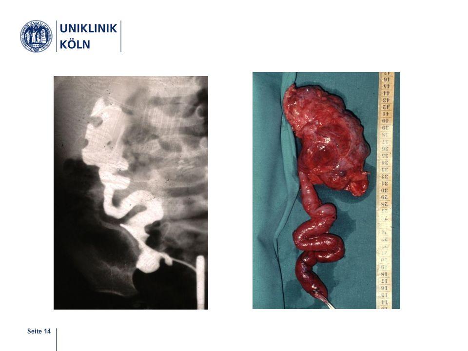 Seite 15 Blasenekstrophie Meist zusammen mit Epispadie und klaffender Symphyse Therapie: operative Korrektur