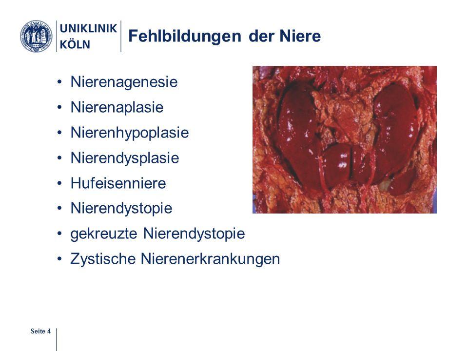 Seite 4 Fehlbildungen der Niere Nierenagenesie Nierenaplasie Nierenhypoplasie Nierendysplasie Hufeisenniere Nierendystopie gekreuzte Nierendystopie Zystische Nierenerkrankungen 4-38