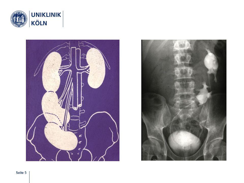 Seite 6 Subpelvine Stenose Segmentale intrinsische Ureterdysplasie oder hoher Ureterabgang Selten Gefäßüberkreuzung oder Brücke bei Hufeisenniere Häufig Zufallsbefund, ggf.