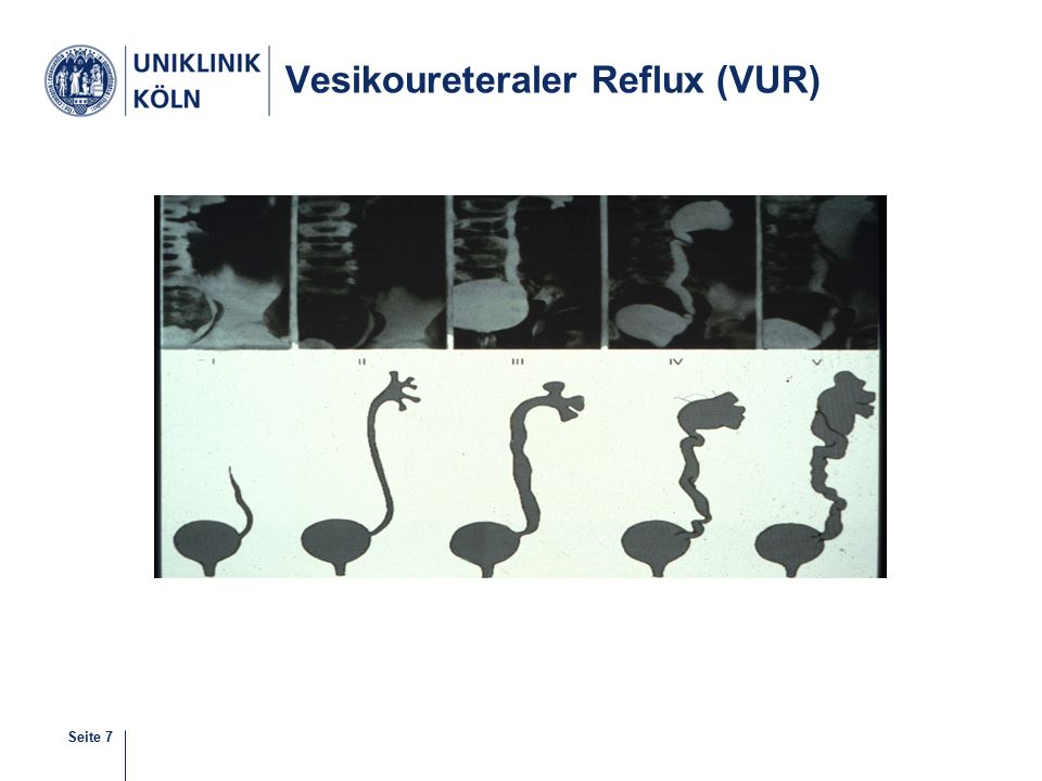 Seite 8 Refluxive Uretermündung Fluß- Richtung Blasenwand- muskulatur Harnleiter- mündung Normale Uretermündung