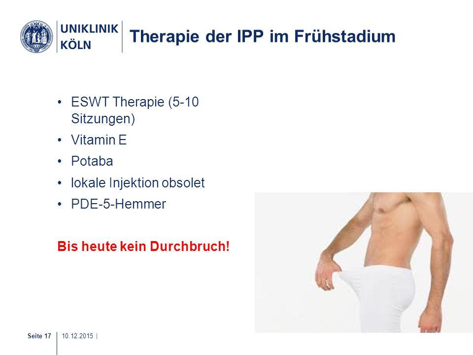 Seite 17 10.12.2015 | Therapie der IPP im Frühstadium ESWT Therapie (5-10 Sitzungen) Vitamin E Potaba lokale Injektion obsolet PDE-5-Hemmer Bis heute
