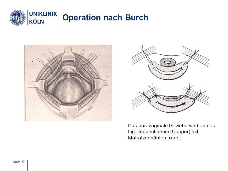 Seite 27 Operation nach Burch Das paravaginale Gewebe wird an das Lig. ileopectineum (Cooper) mit Matratzennähten fixiert.