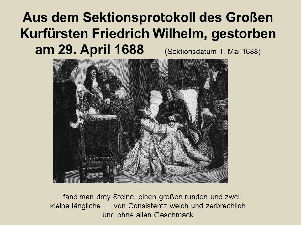 Aus dem Sektionsprotokoll des Großen Kurfürsten Friedrich Wilhelm, gestorben am 29. April 1688 ( Sektionsdatum 1. Mai 1688)...fand man drey Steine, ei