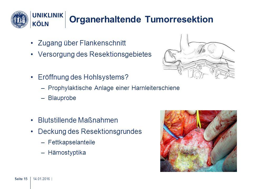 Seite 15 14.01.2016 | Organerhaltende Tumorresektion Zugang über Flankenschnitt Versorgung des Resektionsgebietes Eröffnung des Hohlsystems? –Prophyla