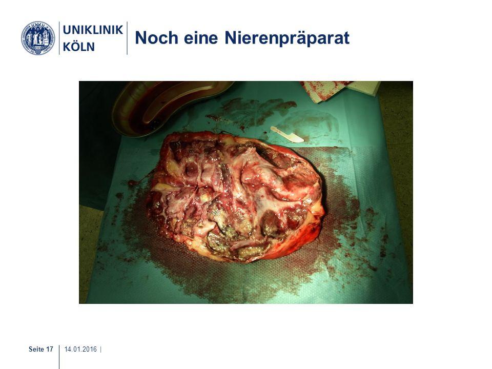 Seite 17 14.01.2016 | Noch eine Nierenpräparat