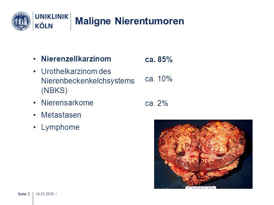 Seite 4 14.01.2016 | WHO-Klassifikation der Nierentumoren Histologische Einteilung: –konventionelles/klarzelliges NZK (70-80%) –Papilläres Nierenzellkarzinom Typ I + II (10-20%) –Chromophobes Nierenzellkarzinom (5%) –Ductus-Bellini-Karzinom (< 1%) –Onkozytom (2-4%) 80% der Nierentumore sind maligne NZK 70-80% davon sind klarzellige NZK