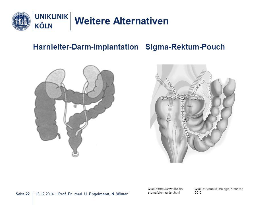 Seite 22 18.12.2014 | Prof. Dr. med. U. Engelmann, N. Winter Harnleiter-Darm-ImplantationSigma-Rektum-Pouch Weitere Alternativen Quelle: Aktuelle Urol