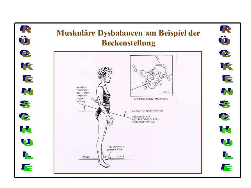 Spondylose, Spondylolisthese und Morbus Scheuermann Ursachen und Definition (Morbus Scheuermann): Bei diesem Krankheitsbild handelt es sich um eine Wa
