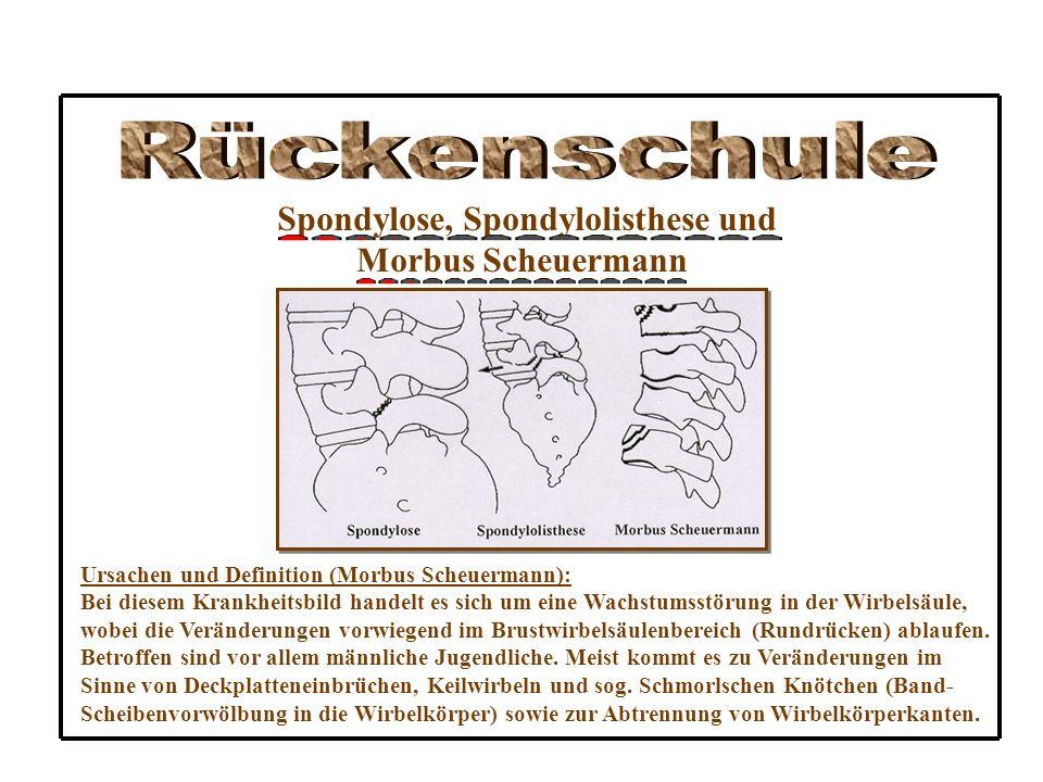 Spondylose, Spondylolisthese und Morbus Scheuermann Ursachen und Definition (Morbus Scheuermann): Bei diesem Krankheitsbild handelt es sich um eine Wachstumsstörung in der Wirbelsäule, wobei die Veränderungen vorwiegend im Brustwirbelsäulenbereich (Rundrücken) ablaufen.