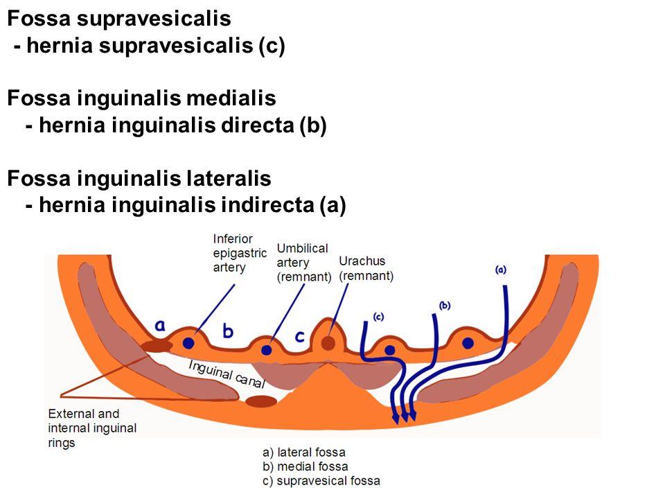Fossa supravesicalis - hernia supravesicalis (c) Fossa inguinalis medialis - hernia inguinalis directa (b) Fossa inguinalis lateralis - hernia inguinalis indirecta (a)