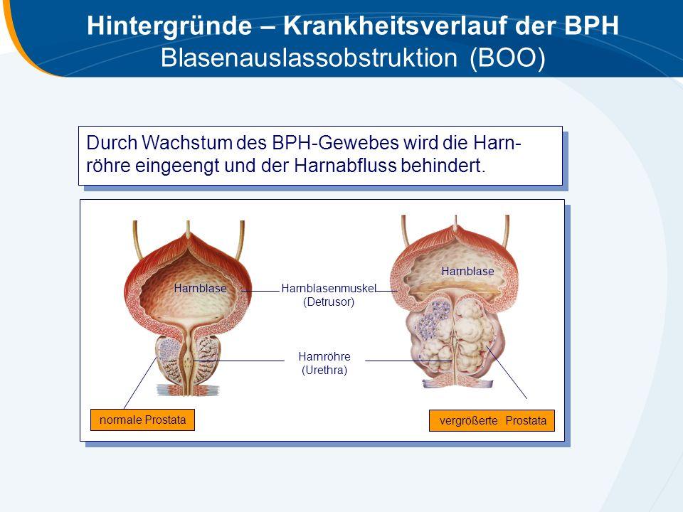 Hintergründe – Krankheitsverlauf der BPH Blasenauslassobstruktion (BOO) Durch Wachstum des BPH-Gewebes wird die Harn- röhre eingeengt und der Harnabfl