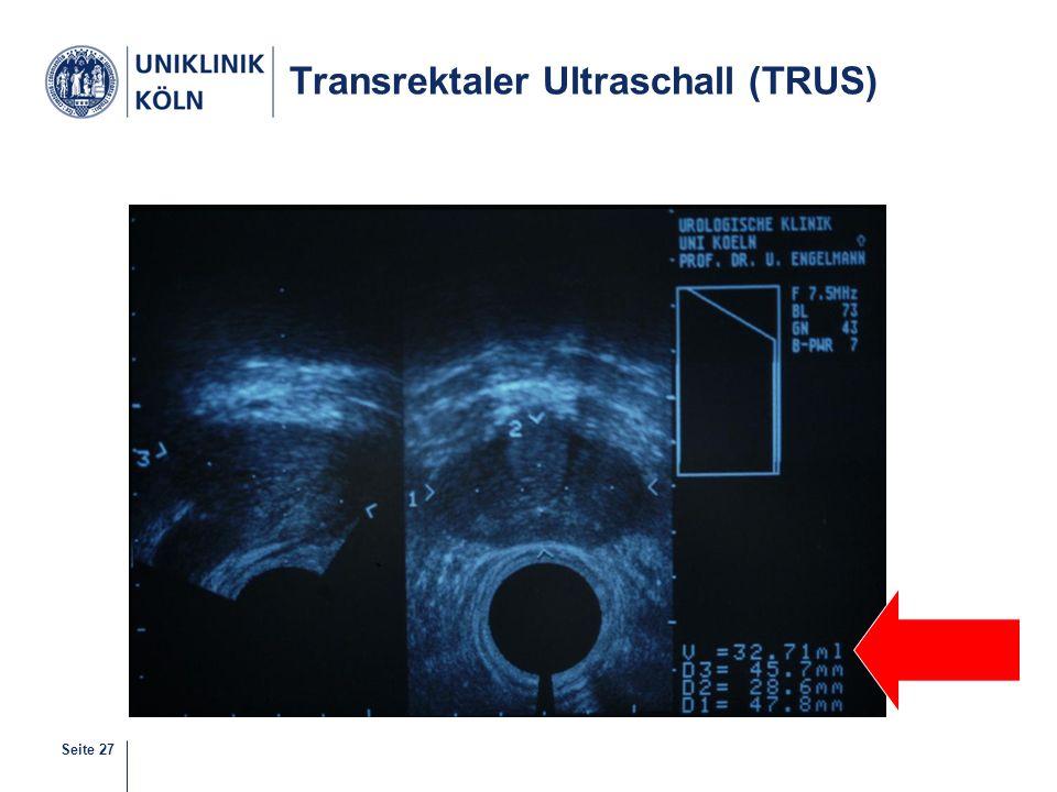 Seite 27 Transrektaler Ultraschall (TRUS)