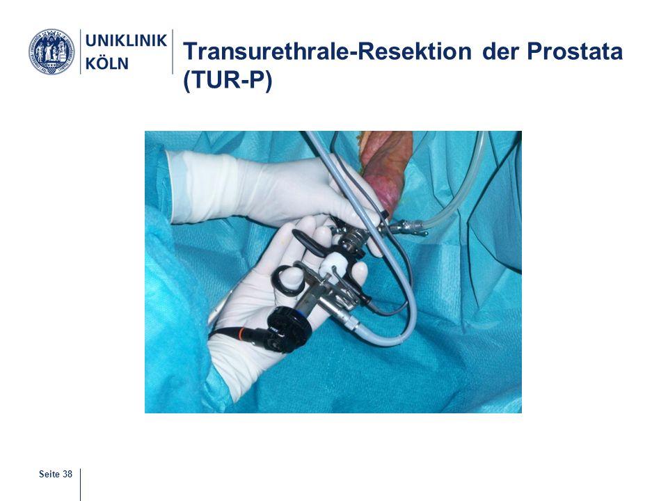 Seite 38 Transurethrale-Resektion der Prostata (TUR-P)