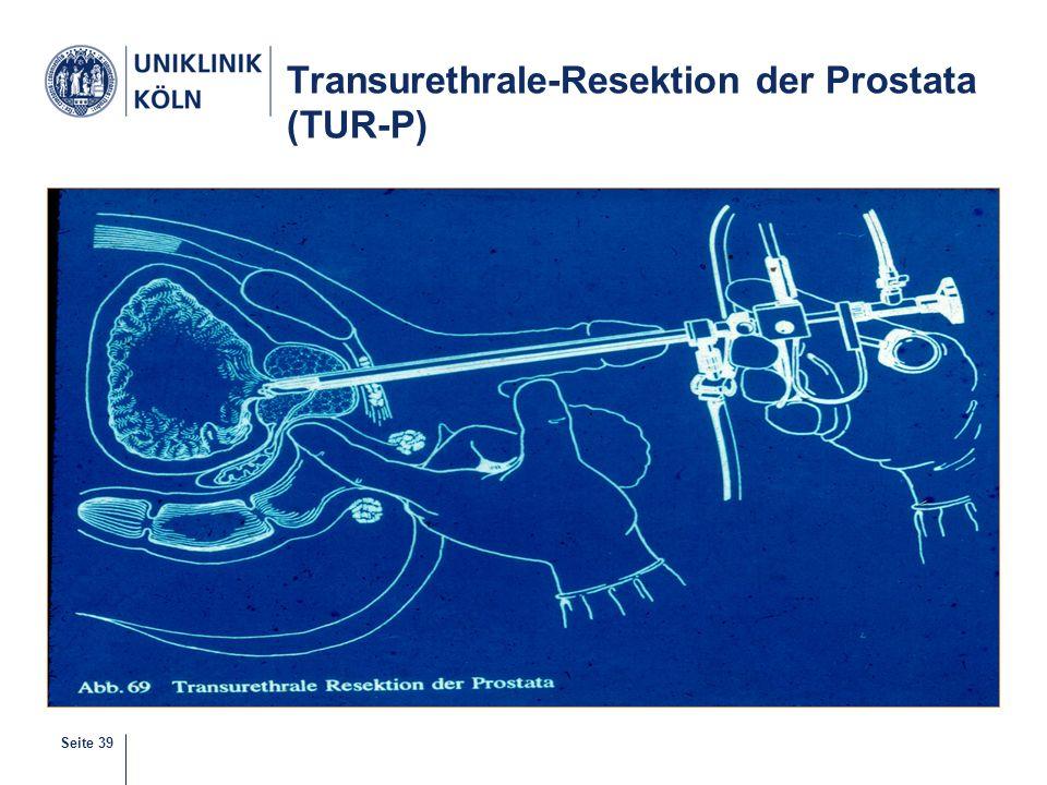 Seite 39 Transurethrale-Resektion der Prostata (TUR-P)