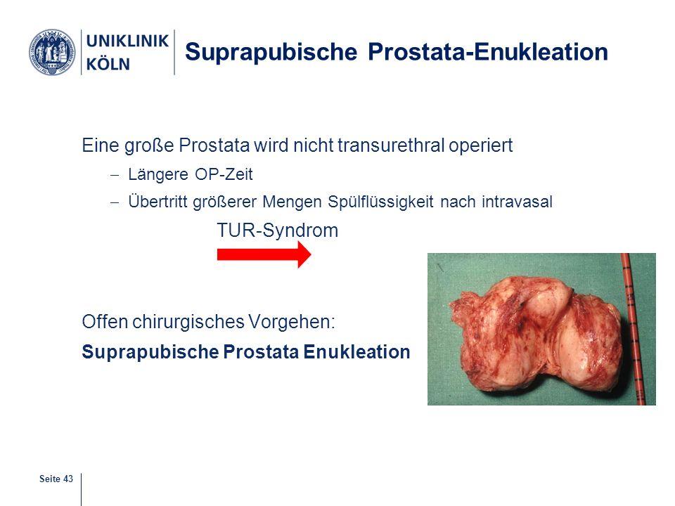 Seite 43 Suprapubische Prostata-Enukleation Eine große Prostata wird nicht transurethral operiert  Längere OP-Zeit  Übertritt größerer Mengen Spülfl