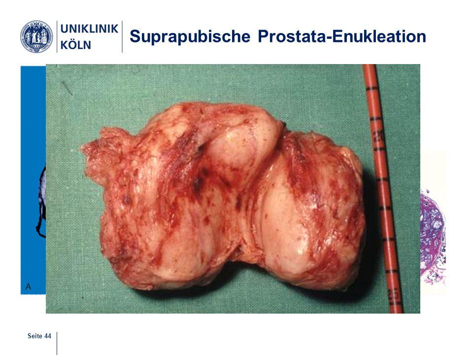 Seite 44 Suprapubische Prostata-Enukleation
